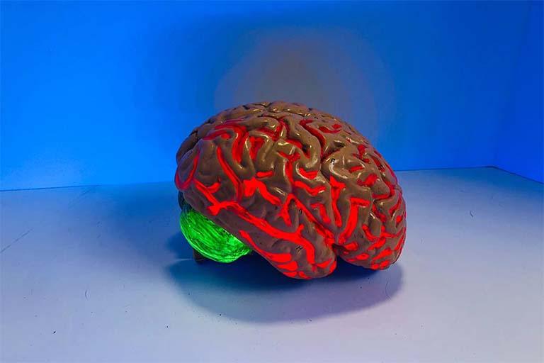 Plasticitat neurològica